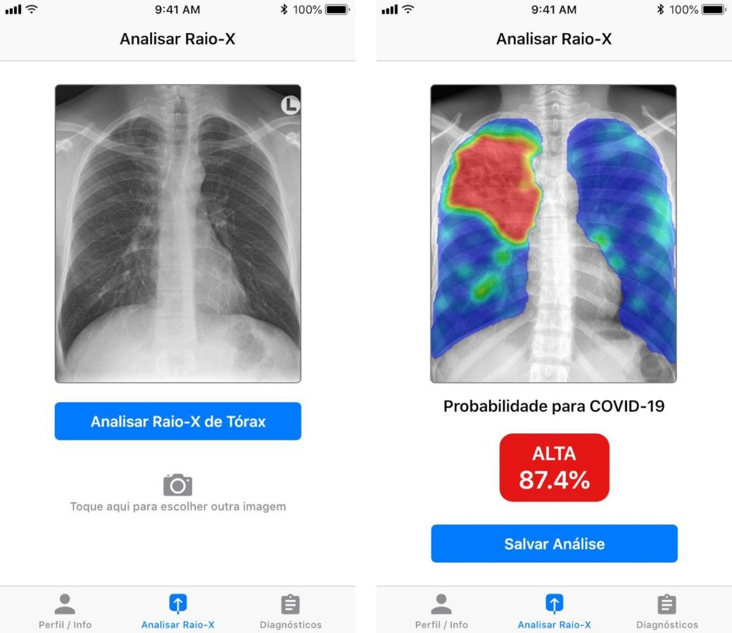 Captura de tela do aplicativo desenvolvido pelas startups para o diagnóstico da Covid-19